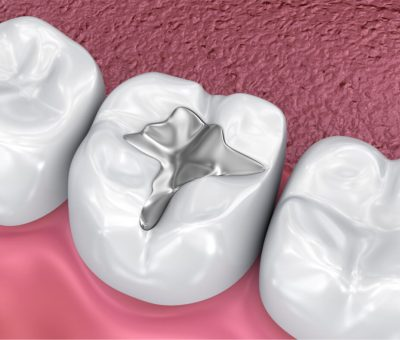 tooth pain after a filling with amalgam