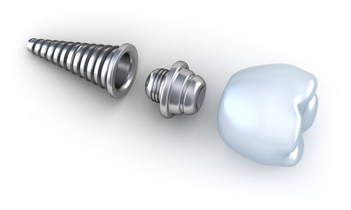illustration of tooth implant parts