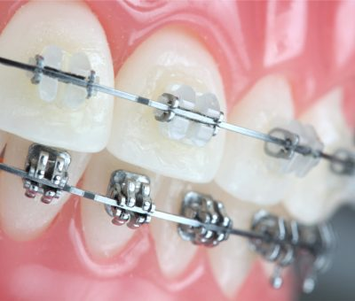 braces types and colors
