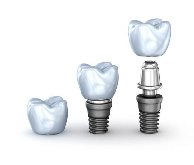 short dental implants
