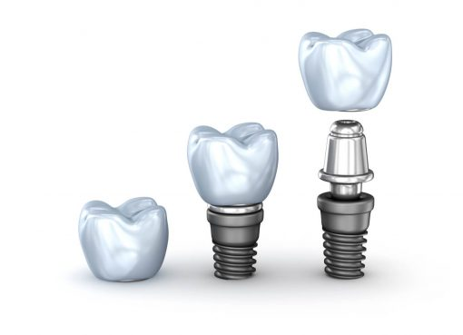 short dental implants