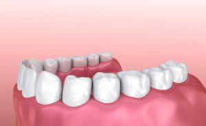 3d printed teeth implants