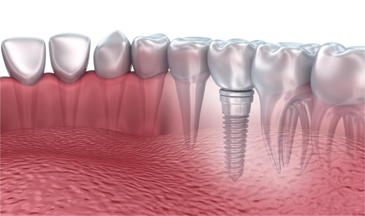 3d printed teeth implants