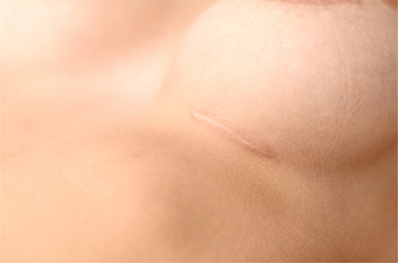 breast augmentation scars