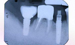 peri implantitis Complication