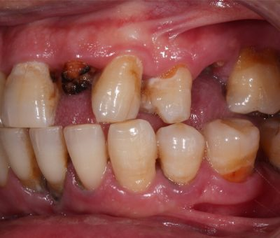 oral crohn's disease