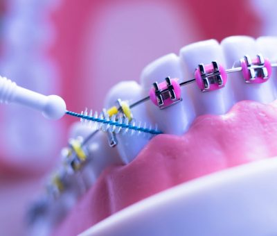 dental cleaning with braces