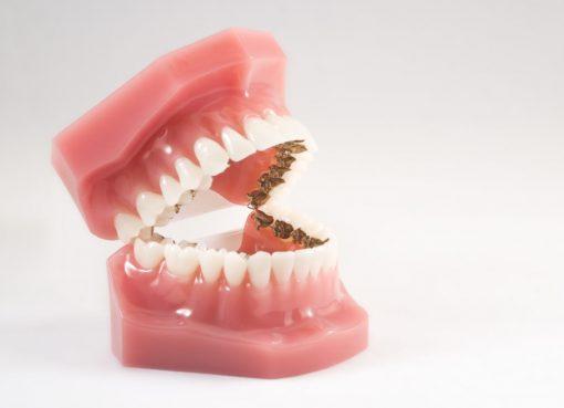 lingual orthodontic