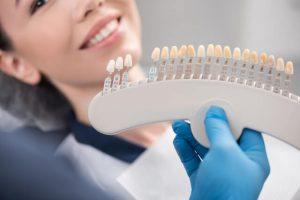 veneers teeth pros and cons