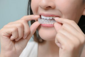 how long does it take for invisalign to work