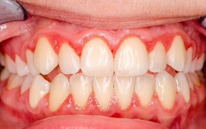 Gum Disease Toothpaste
