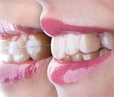 are clear braces more expensive