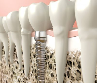 why do dental implants cost so much