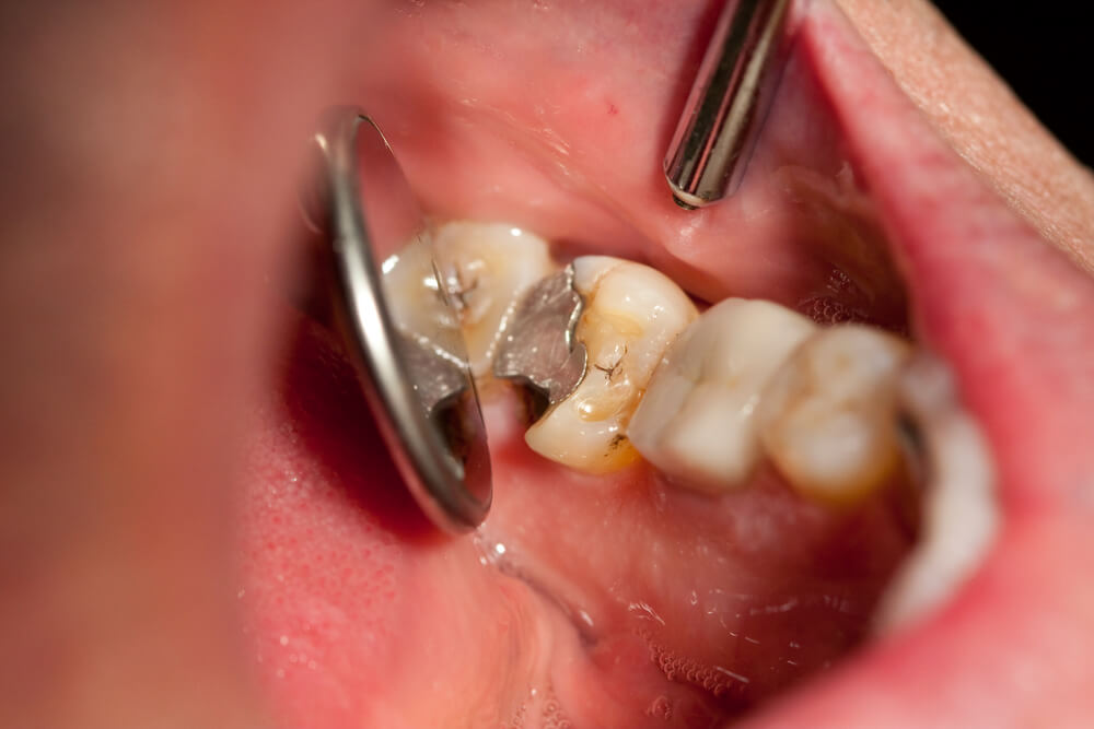 After A Tooth Broken At Gum Line Can It Be Saved