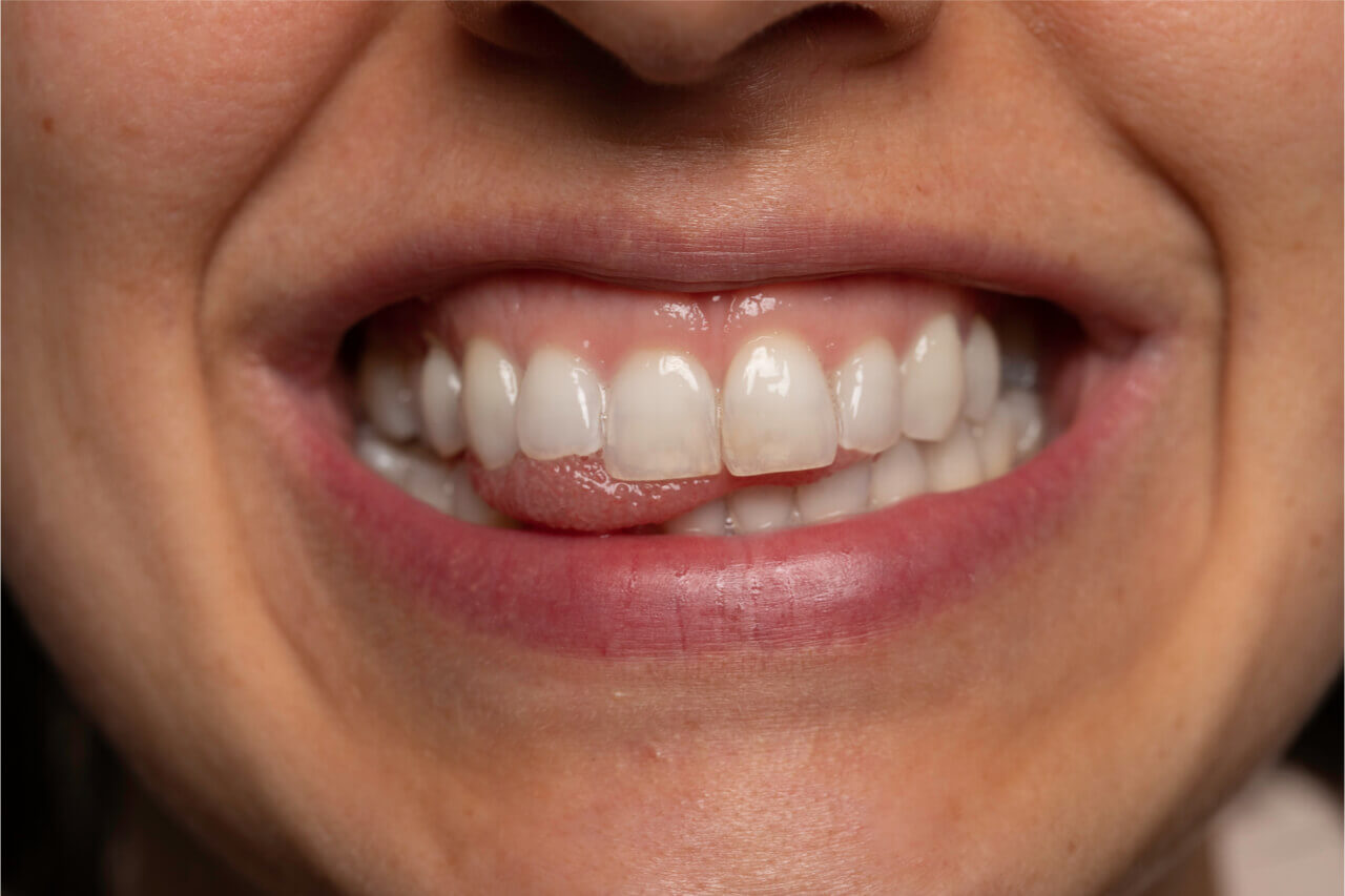 Steps On How To Treat Receding Gums