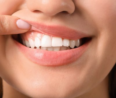 Are Meridian Tooth Chart And Periodontal Chart The Same