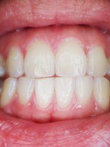 pregnancy gingivitis bleeding gums